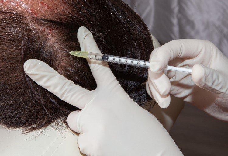 لزراعة الشعر