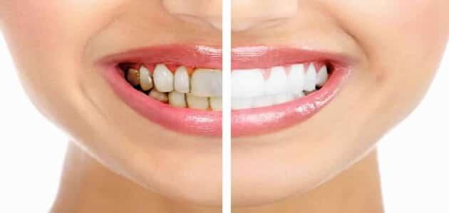 تبييض الأسنان في تركيا 13
