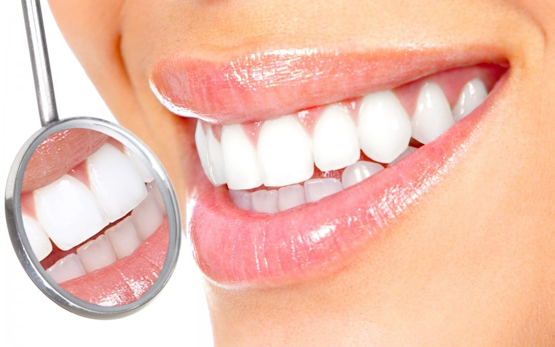 تبييض الأسنان في تركيا