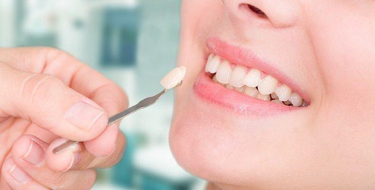 تبييض الأسنان بالليزر 13