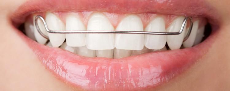 تقويم الاسنان المتحرك