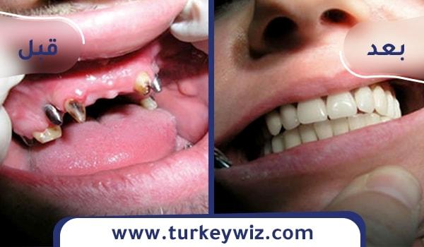 تبييض الأسنان في تركيا 15