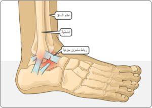 اصابات مفصل القدم علاجها وأنواعها وكيفية الوقاية منها معلومات عن اصابات مفصل القدم