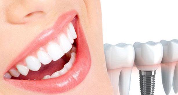 أفضل مستشفى زراعة الأسنان في تركيا تعرف على الأفضل الآن عرب تركيا
