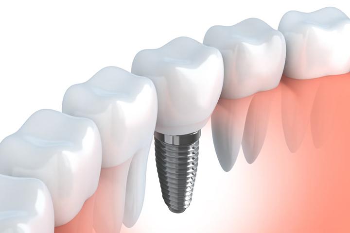 اسعار زراعة الاسنان في تركيا تعرف على اسعار زراعة الاسنان بتركيا