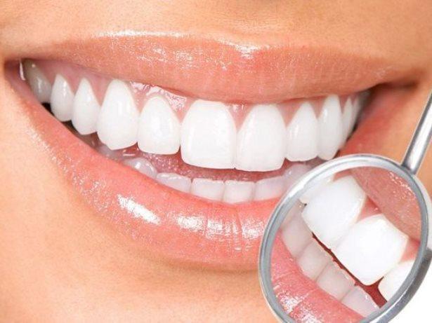 تبييض الأسنان في تركيا 8