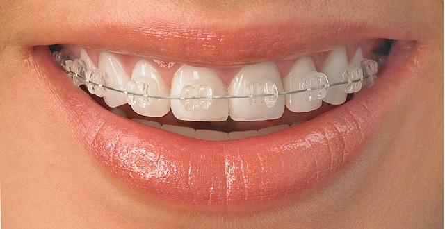 تقويم الأسنان في اسطنبول تعرف على طريقة تقويم الأسنان بإسطنبول عرب تركيا