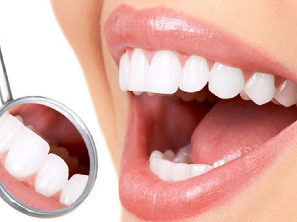 اسعار عدسات الاسنان في تركيا اسعار مغرية ومناسبة للجميع عرب تركيا