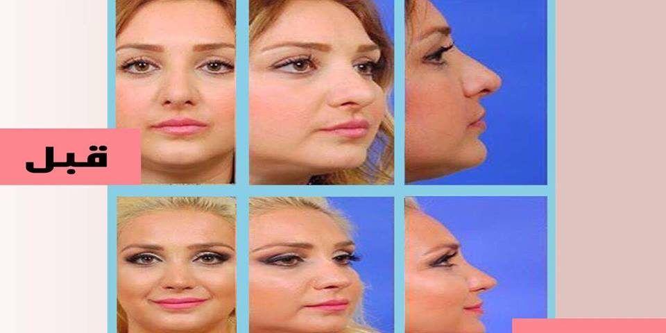 أسعار عمليات التجميل في 11